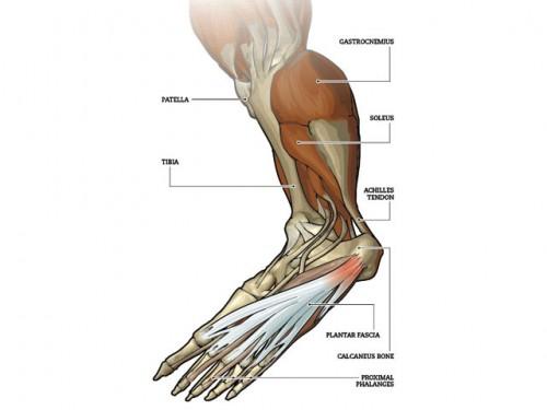 Plantar Fasciitis - Running Injury Prevention and Treatment