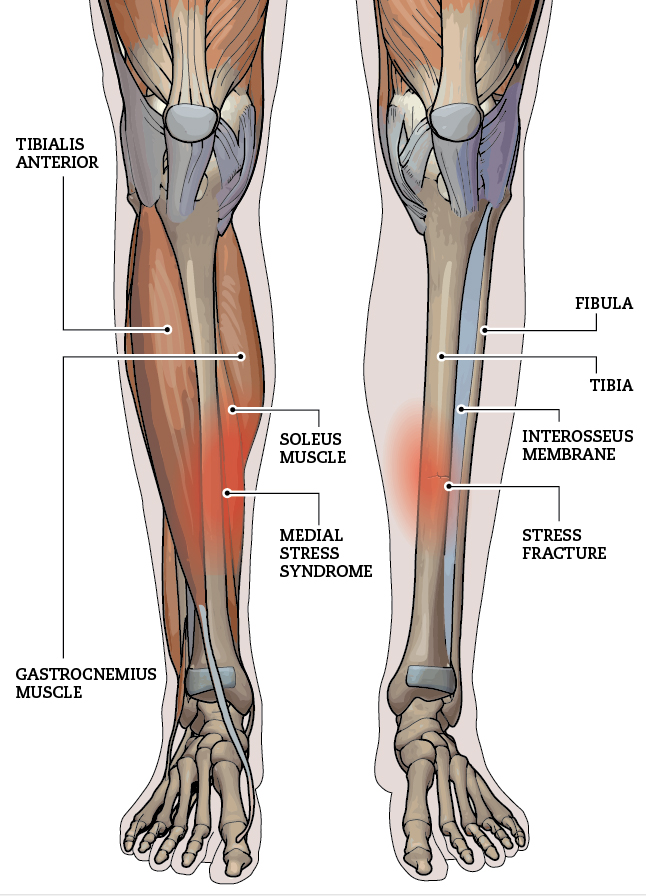 Tibial Stress Injuries Canadian Running Magazine