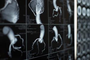 Human heart and coronary artery  images