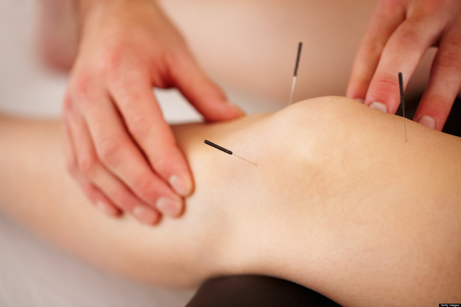 Acupuncture :Understanding What the Needle Poke Can Evoke Acupuncture :Understanding What the Needle Poke Can Evoke new foto