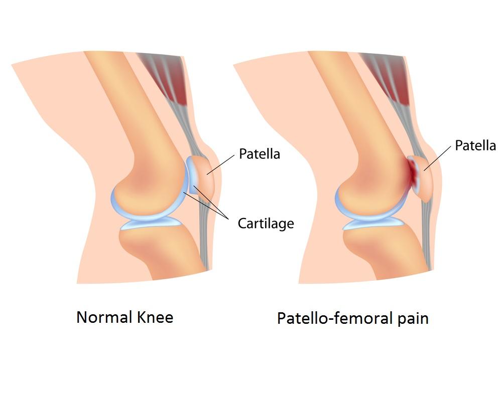 PFPS runner's knee